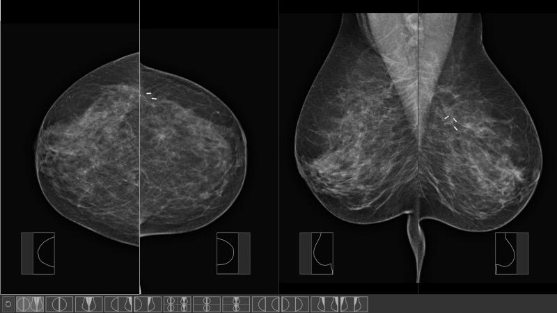przeglądarka obrazów medycznych mammografia