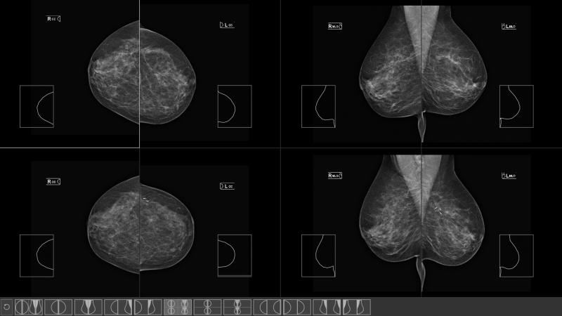 mammografia przeglądarka obrazów medycznych