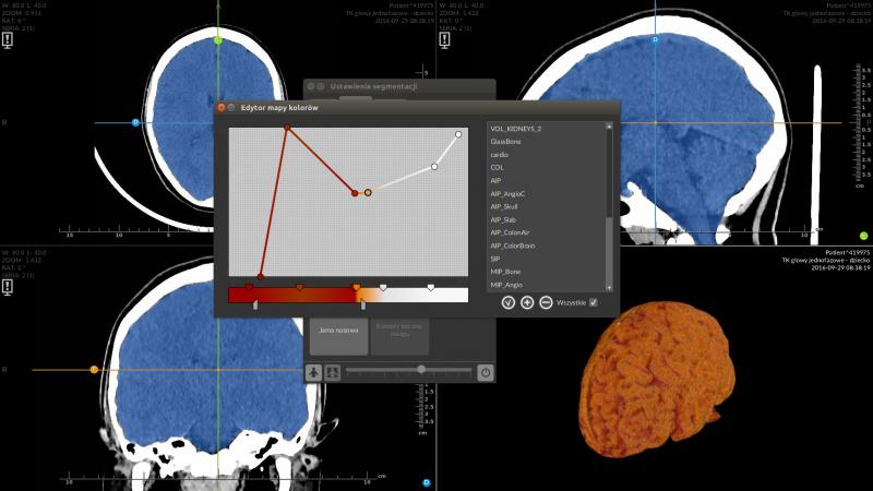 segmentacja mózgu